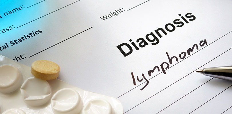 Risk Factors and Causes of Hodgkin Lymphoma